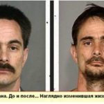 лицо наркомана до и после